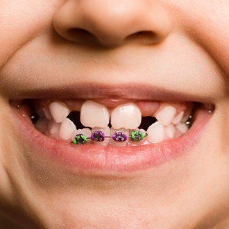 Closeup of smile during pediatric orthodontic treatment